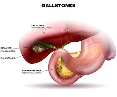 Gallstones 400W