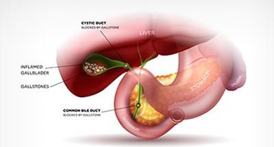 Gallbladder Health